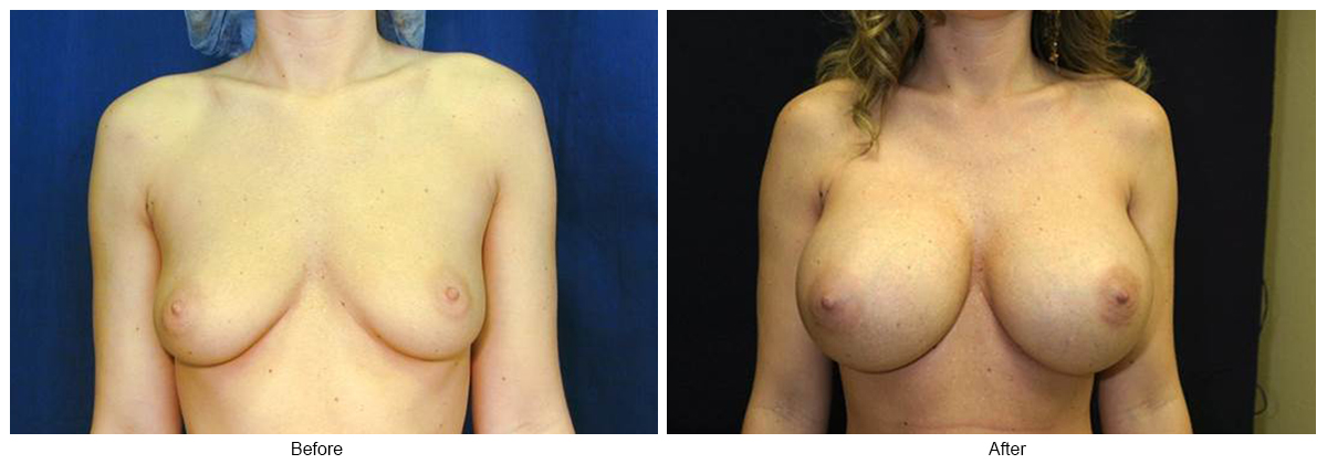 Orange County Cosmetic Surgery Clinique Before & After Breast Augmentation 8 - Front