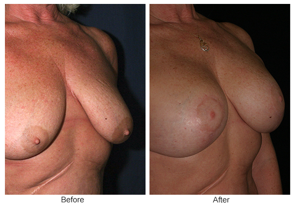 Orange County Cosmetic Surgery Clinique Before & After Breast Lift 10 - Right Quarter