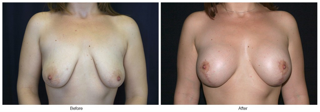 Orange County Cosmetic Surgery Clinique Before & After Breast Lift 14 - Front