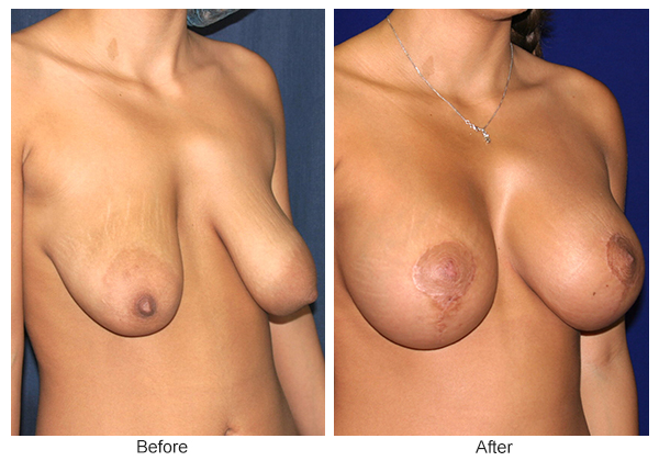 Orange County Cosmetic Surgery Clinique Before & After Breast Lift 2 - Right Quarter