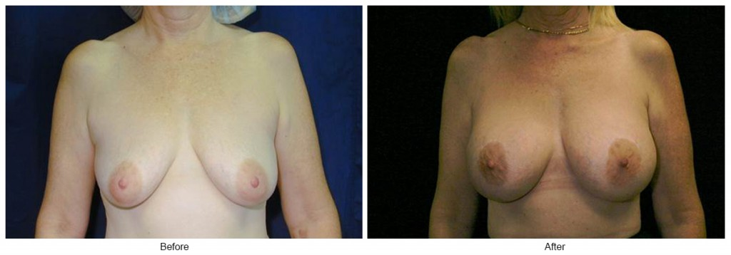 Orange County Cosmetic Surgery Clinique Before & After Breast Lift 6 - Front