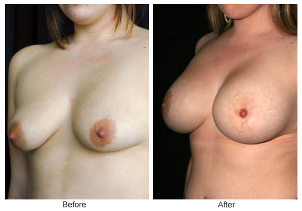 Orange County Cosmetic Surgery Clinique Before & After Breast Lift 8 - Left Quarter