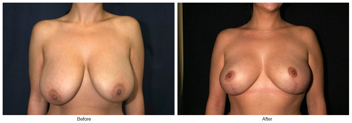 Orange County Cosmetic Surgery Clinique Before & After Breast Reduction 1 - Front