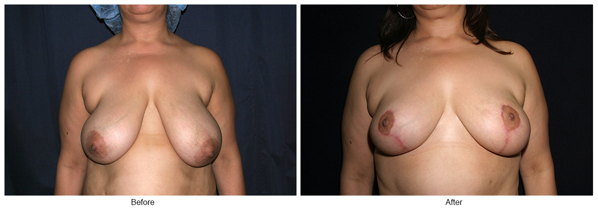 Orange County Cosmetic Surgery Clinique Before & After Breast Reduction 2 - Front