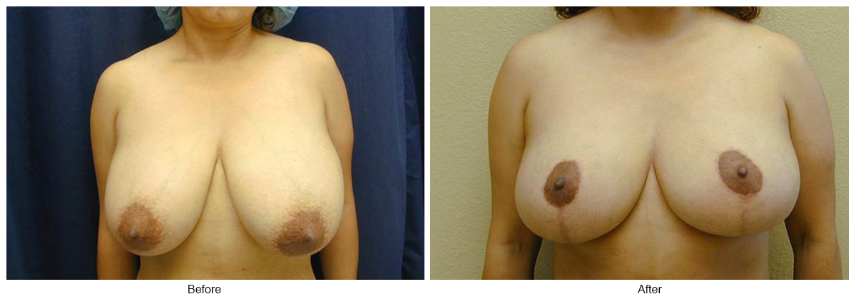 Orange County Cosmetic Surgery Clinique Before & After Breast Reduction 5 - Front