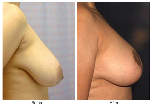 Orange County Cosmetic Surgery Clinique Before & After Breast Reduction 7 - Right