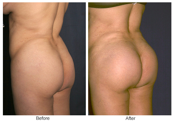 Orange County Cosmetic Surgery Clinique Before & After Buttock Augmentation 1 - Right Quarter