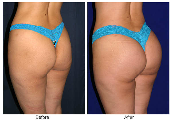 Orange County Cosmetic Surgery Clinique Before & After Buttock Augmentation 2 - Right Quarter