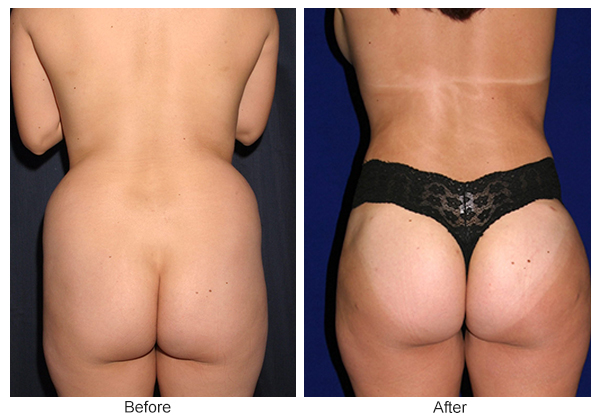 Orange County Cosmetic Surgery Clinique Before & After Buttock Augmentation 3 - Front