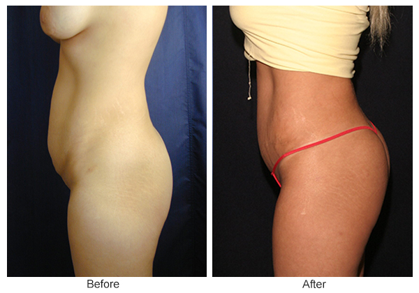 Orange County Cosmetic Surgery Clinique Before & After Buttock Augmentation 4 - Right
