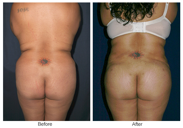 Orange County Cosmetic Surgery Clinique Before & After Buttock Augmentation 5 - Front
