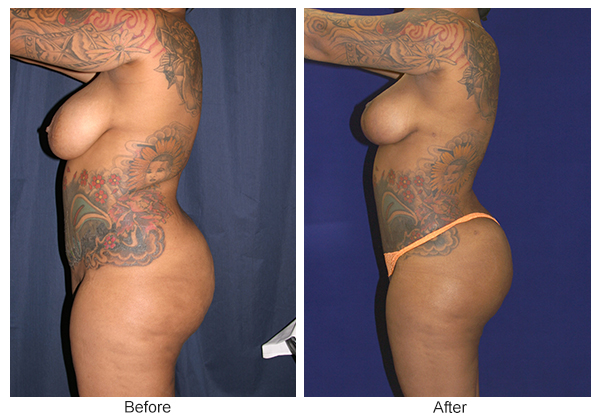 Orange County Cosmetic Surgery Clinique Before & After Buttock Augmentation 6 - Right