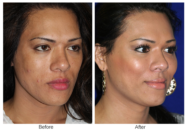 Orange County Cosmetic Surgery Clinique Before & After Cheek Implant 1 - Right Quarter