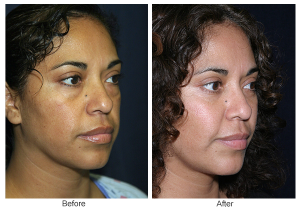 Orange County Cosmetic Surgery Clinique Before & After Cheek Implant 2