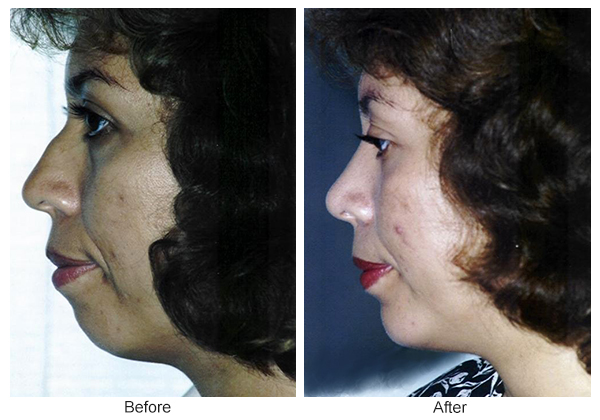 Orange County Cosmetic Surgery Clinique Before & After Chin Implant 1