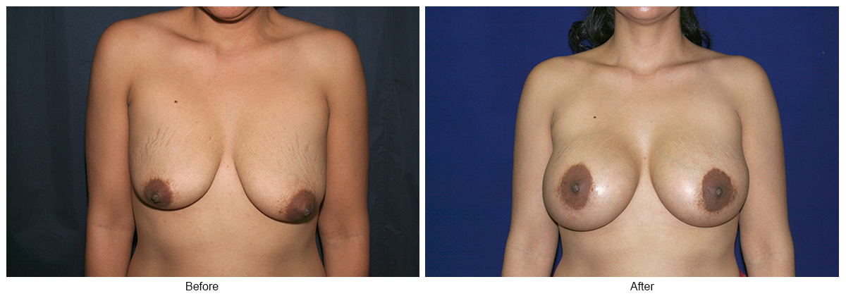 Orange County Cosmetic Surgery Clinique Before & After Crescent Lift 2 - Front