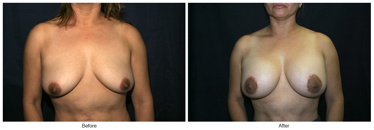 Orange County Cosmetic Surgery Clinique Before & After Crescent Lift 3 - Front