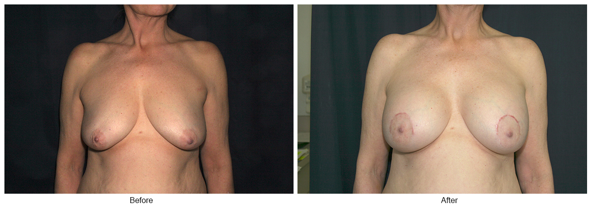 Orange County Cosmetic Surgery Clinique Before & After Crescent Lift 4 - Front