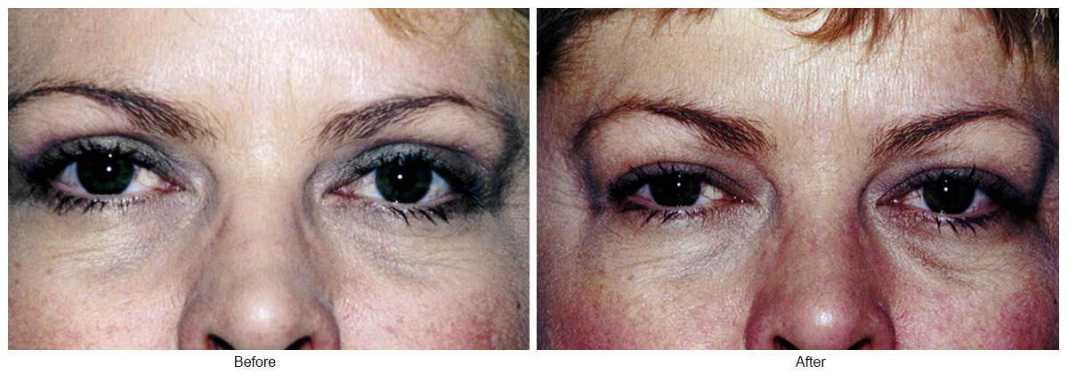 Orange County Cosmetic Surgery Clinique Before & After Eyelid Surgery 4
