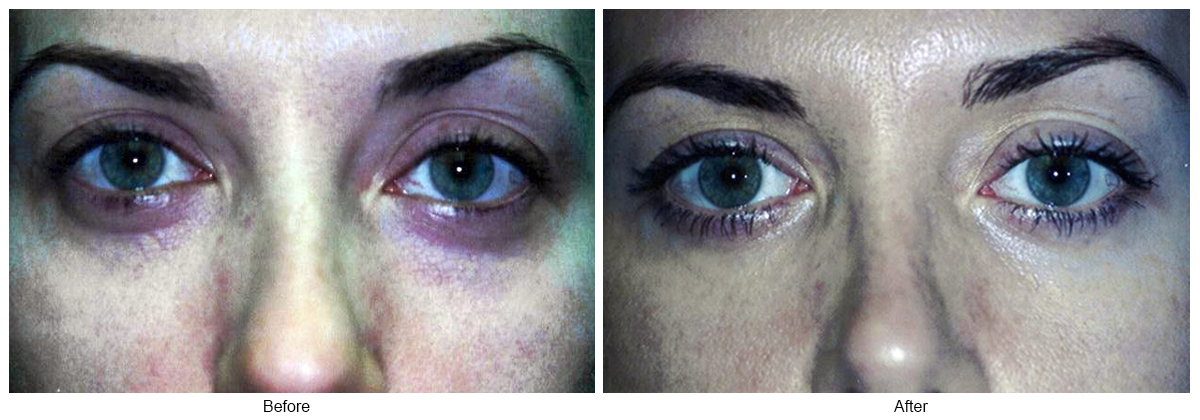 Orange County Cosmetic Surgery Clinique Before & After Eyelid Surgery 5