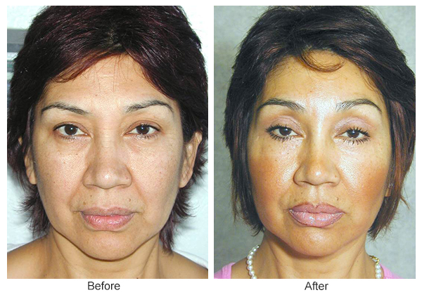 Orange County Cosmetic Surgery Clinique Before & After Forehead Lift 1
