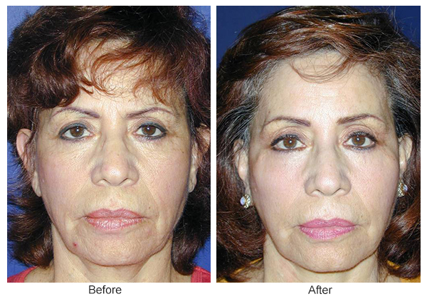 Orange County Cosmetic Surgery Clinique Before & After Forehead Lift 2 - Front