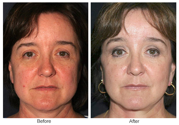 Orange County Cosmetic Surgery Clinique Before & After Forehead Lift 3 - Front