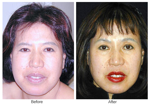 Orange County Cosmetic Surgery Clinique Before & After Forehead Lift 4