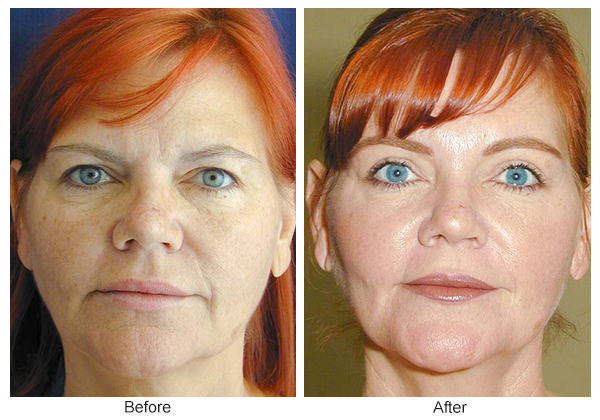 Orange County Cosmetic Surgery Clinique Before & After Forehead Lift 5