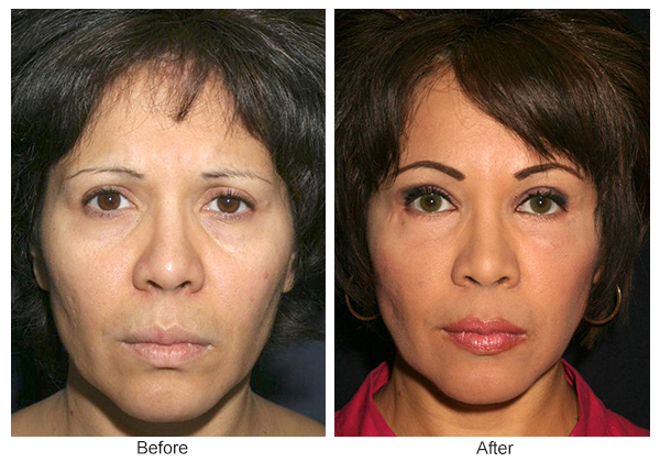 Orange County Cosmetic Surgery Clinique Before & After Forehead Lift 6