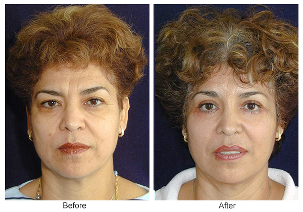 Orange County Cosmetic Surgery Clinique Before & After Forehead Lift 7