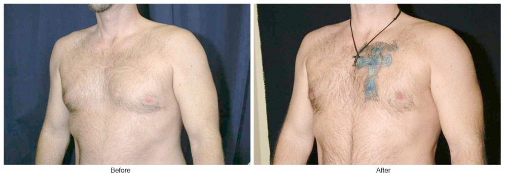 Orange County Cosmetic Surgery Clinique Before & After Gynecomastia 1 - Left Quarter