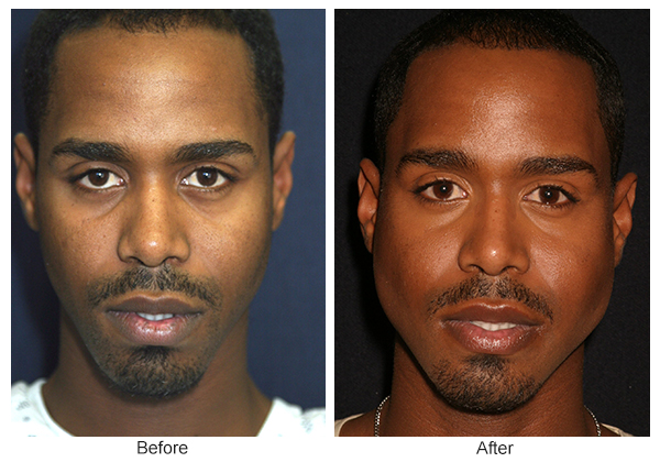 Orange County Cosmetic Surgery Clinique Before & After Jaw Implant 1