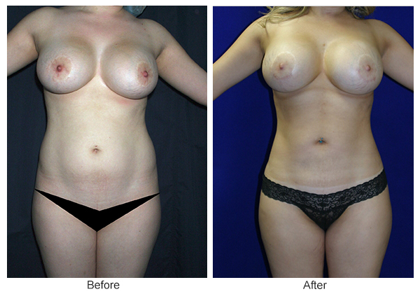 Orange County Cosmetic Surgery Clinique Before & After Liposuction 1 - Front
