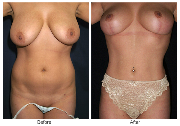 Orange County Cosmetic Surgery Clinique Before & After Liposuction 2 - Front