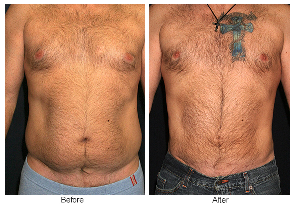 Orange County Cosmetic Surgery Clinique Before & After Liposuction 3 - Front