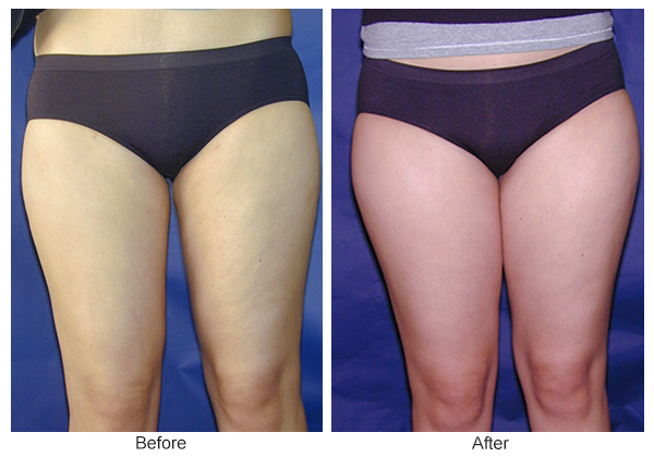 Orange County Cosmetic Surgery Clinique Before & After Liposuction 6 - Front