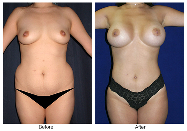 Orange County Cosmetic Surgery Clinique Before & After Liposuction 7 - Front