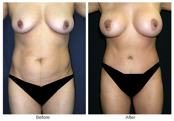 Orange County Cosmetic Surgery Clinique Before & After Mommy Makeover 1 - Front