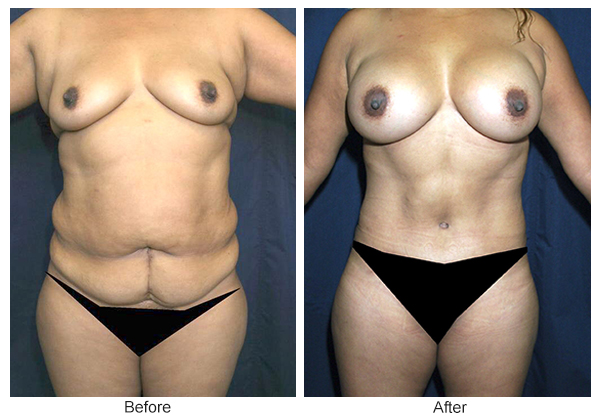 Orange County Cosmetic Surgery Clinique Before & After Mommy Makeover 2 - Front