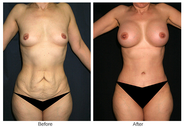 Orange County Cosmetic Surgery Clinique Before & After Mommy Makeover 4 - Front