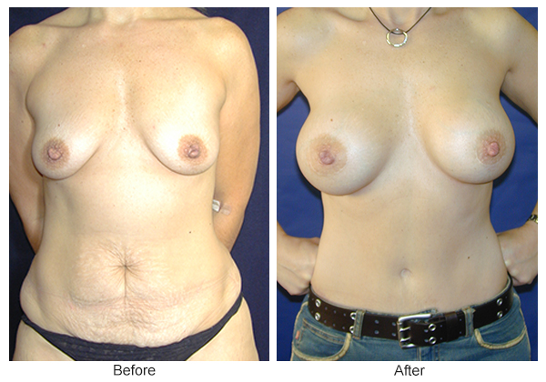 Orange County Cosmetic Surgery Clinique Before & After Mommy Makeover 5 - Front