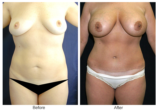 Orange County Cosmetic Surgery Clinique Before & After Mommy Makeover 6 - Front