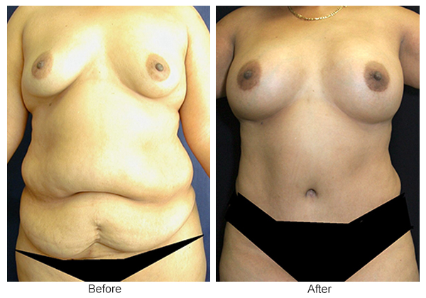 Orange County Cosmetic Surgery Clinique Before & After Mommy Makeover 7 - Front