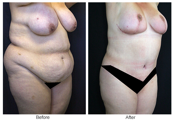 Orange County Cosmetic Surgery Clinique Before & After Mommy Makeover 8 - Right Quarter