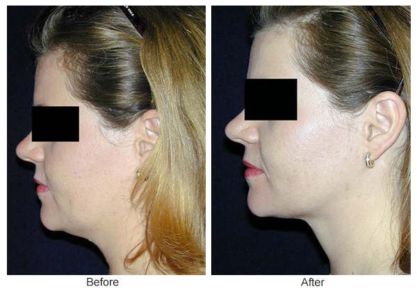 Orange County Cosmetic Surgery Clinique Before & After Neck Lift 1