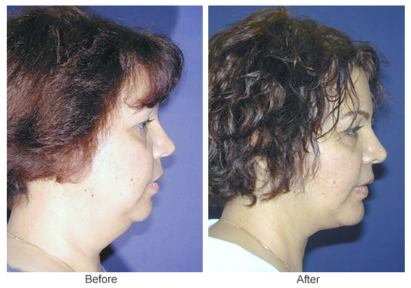 Orange County Cosmetic Surgery Clinique Before & After Neck Lift 2 - Right