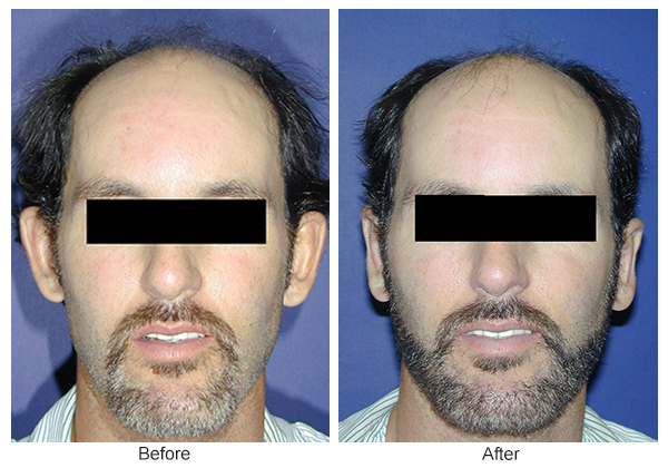 Orange County Cosmetic Surgery Clinique Before & After Otoplasty 1