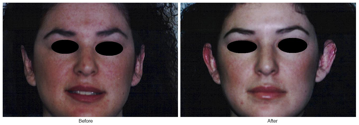 Orange County Cosmetic Surgery Clinique Before & After Otoplasty 3