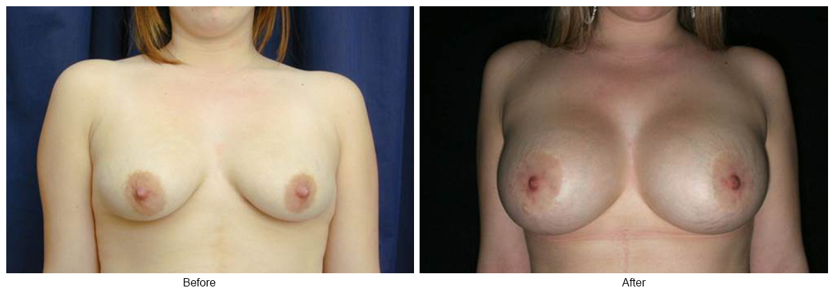 Orange County Cosmetic Surgery Clinique Before & After Periareolar Lift 1 - Front